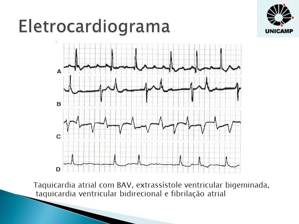 Eletrocardiograma Taquicardia atrial com BAV, extrassístole ventricular bigeminada, taquicardia ventricular bidirecional e fibrilação atrial.