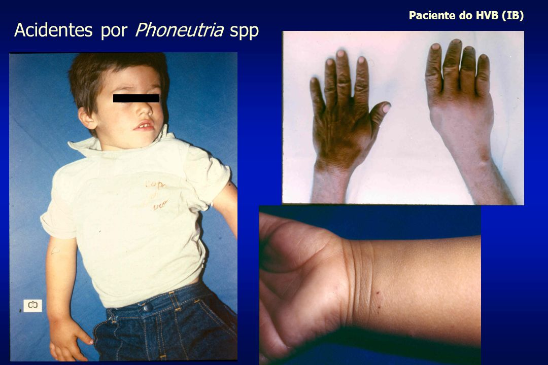 Acidentes por Phoneutria spp