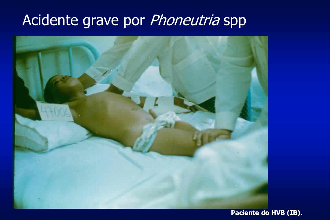 Acidente grave por Phoneutria spp