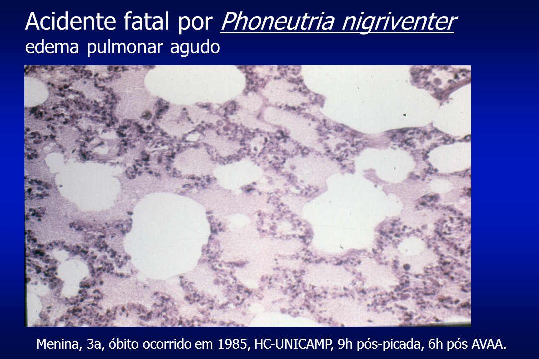 Acidente fatal por Phoneutria nigriventer edema pulmonar agudo