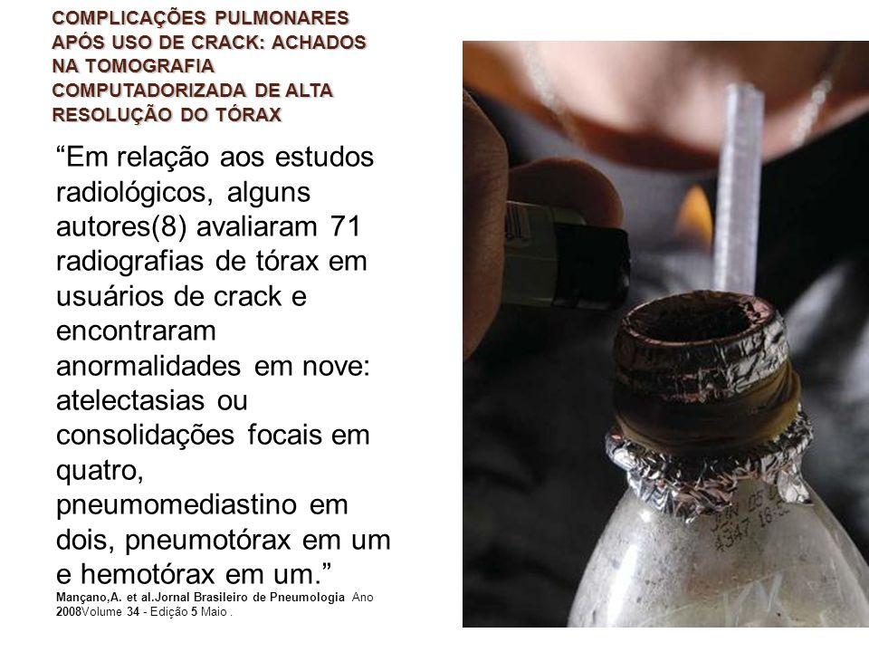 COMPLICAÇÕES PULMONARES APÓS USO DE CRACK: ACHADOS NA TOMOGRAFIA COMPUTADORIZADA DE ALTA RESOLUÇÃO DO TÓRAX