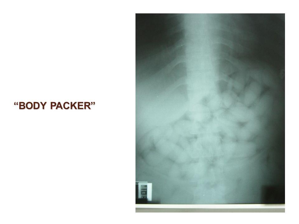 BODY PACKER