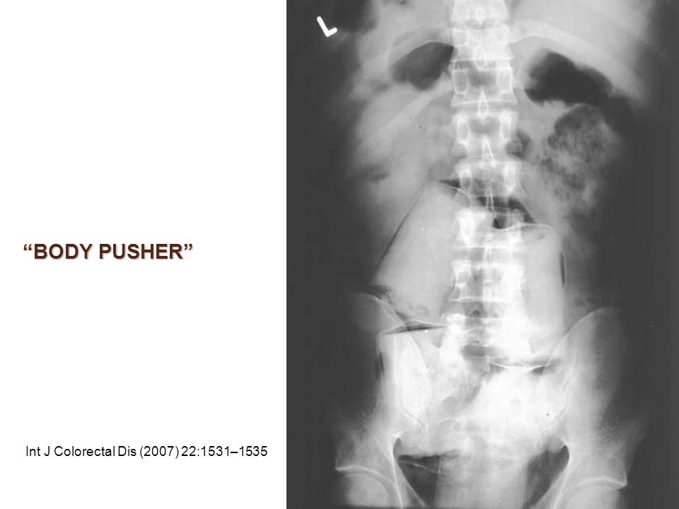 BODY PUSHER Int J Colorectal Dis (2007) 22:1531–1535
