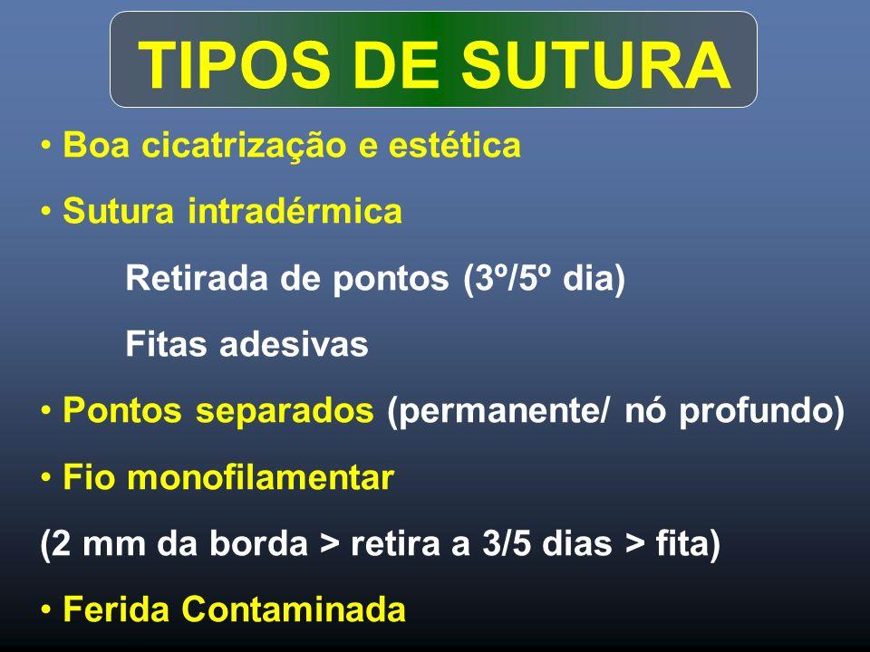 TIPOS DE SUTURA Boa cicatrização e estética Sutura intradérmica