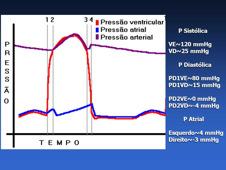 P Sistólica VE~120 mmHg. VD~25 mmHg. P Diastólica. PD1VE~80 mmHg. PD1VD~15 mmHg. PD2VE~0 mmHg.