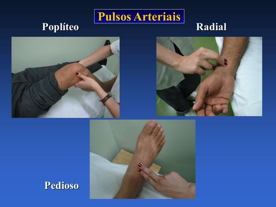 Pulsos Arteriais Poplíteo Radial Pedioso
