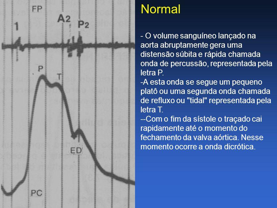 Normal - O volume sanguíneo lançado na aorta abruptamente gera uma distensão súbita e rápida chamada onda de percussão, representada pela letra P.