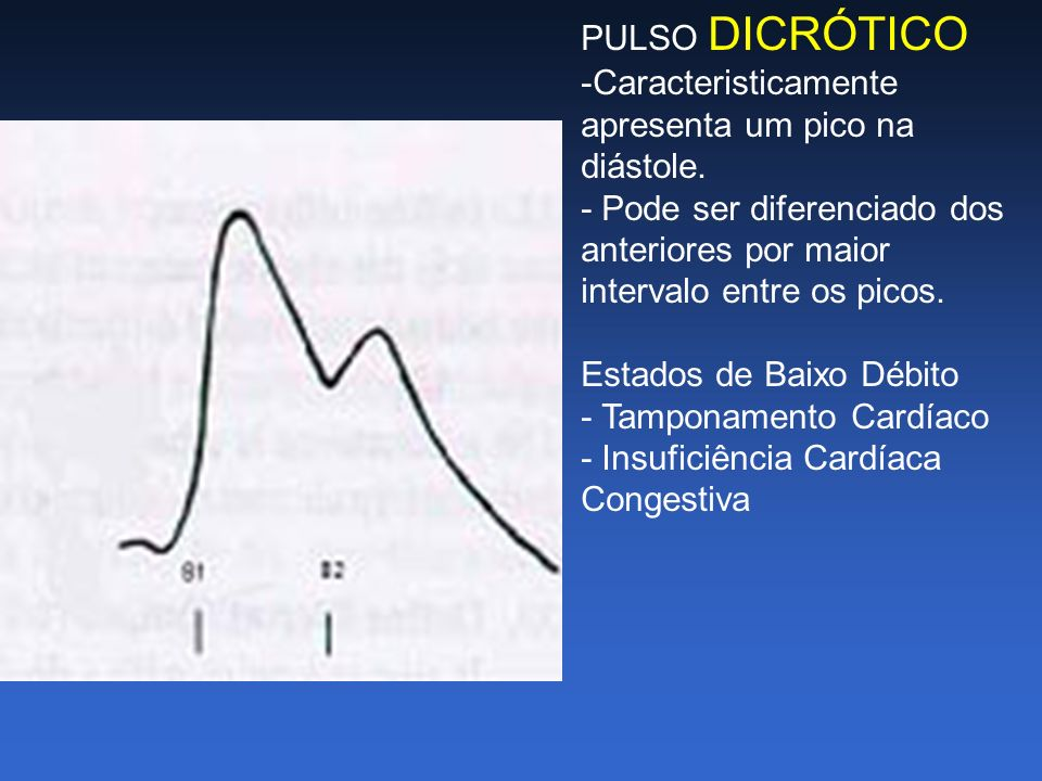 PULSO DICRÓTICO -Caracteristicamente apresenta um pico na diástole. - Pode ser diferenciado dos anteriores por maior.