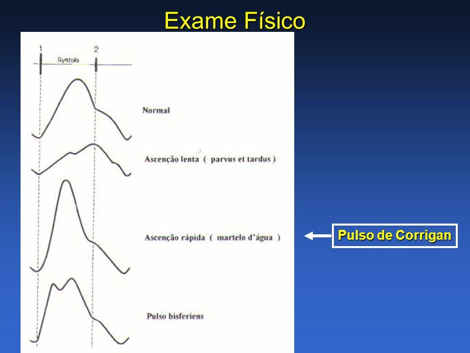 Exame Físico Pulso de Corrigan
