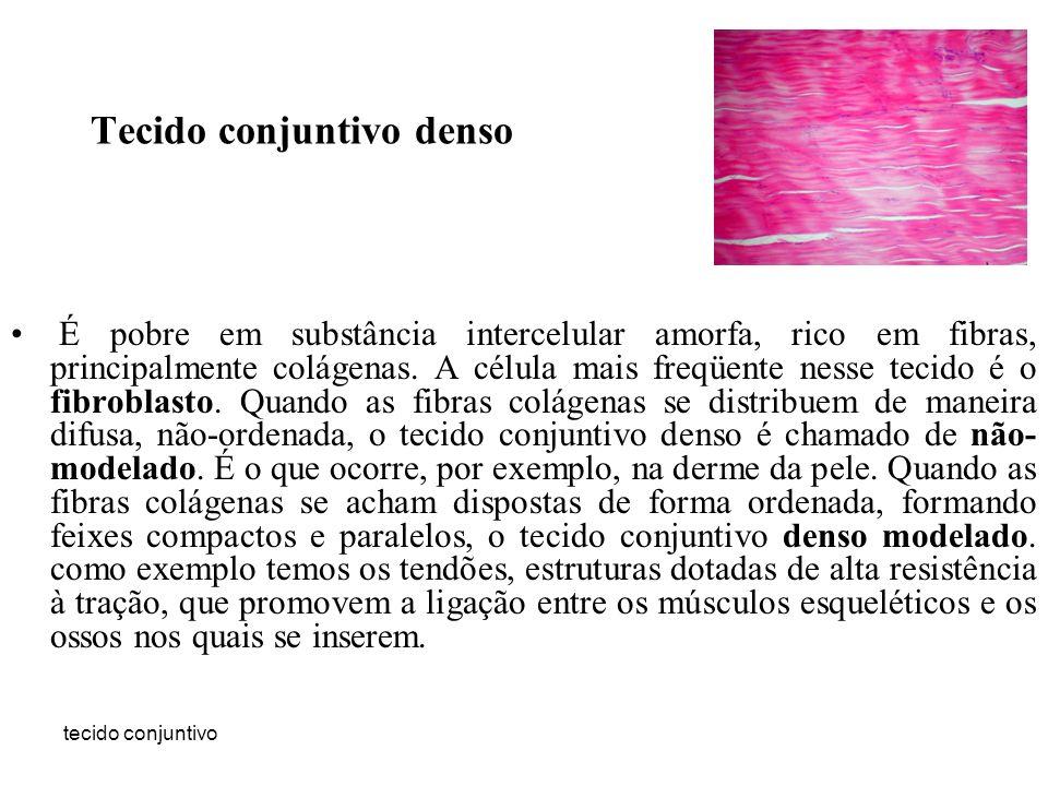 Tecido conjuntivo denso