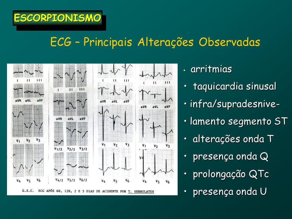ECG – Principais Alterações Observadas