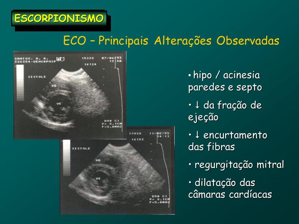 ECO – Principais Alterações Observadas