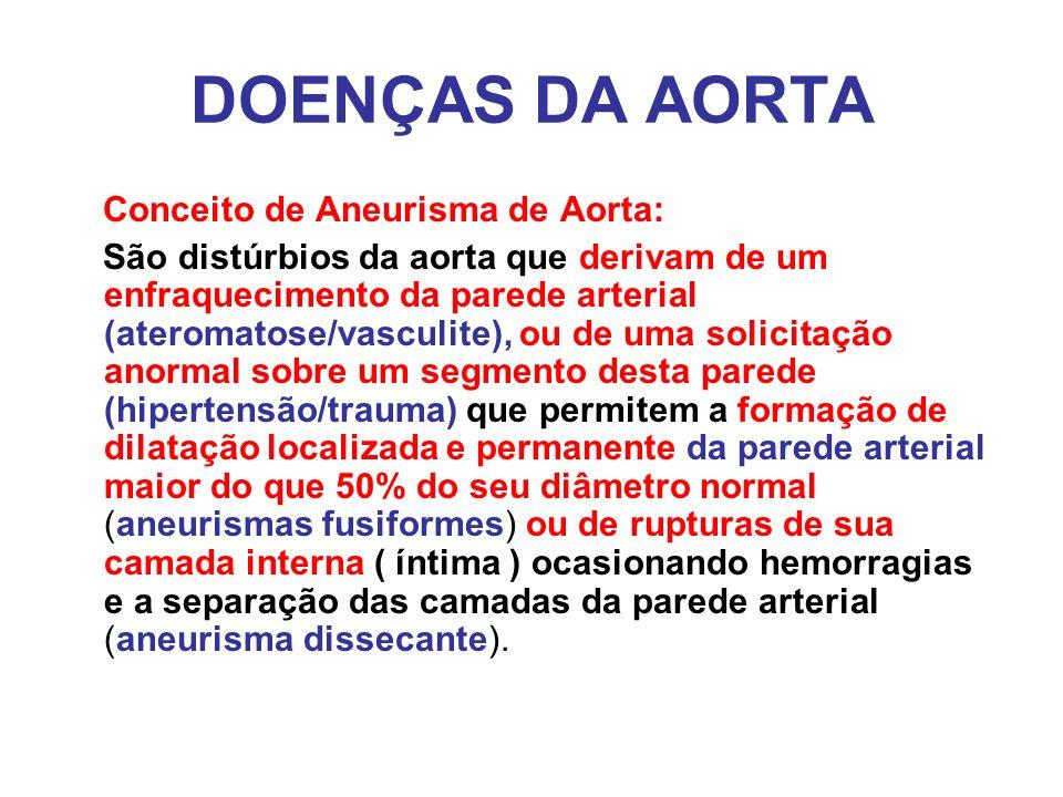 DOENÇAS DA AORTA Conceito de Aneurisma de Aorta: