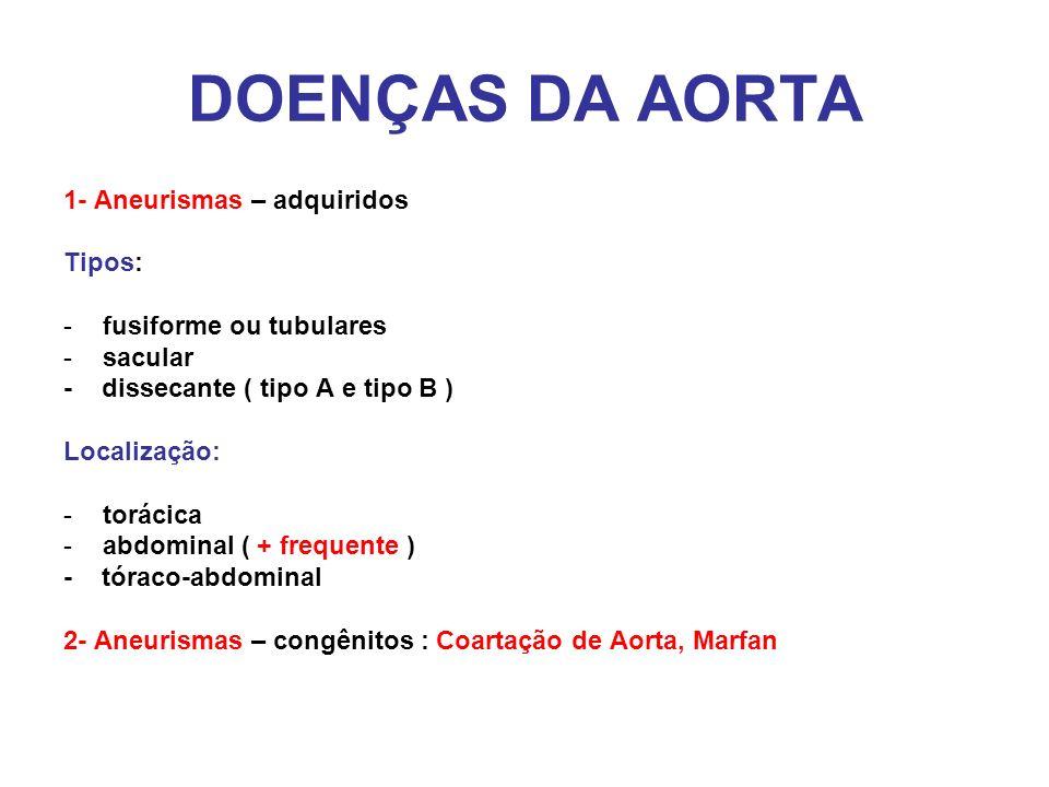 DOENÇAS DA AORTA 1- Aneurismas – adquiridos Tipos: