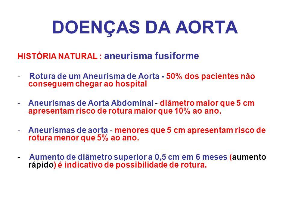 DOENÇAS DA AORTA HISTÓRIA NATURAL : aneurisma fusiforme