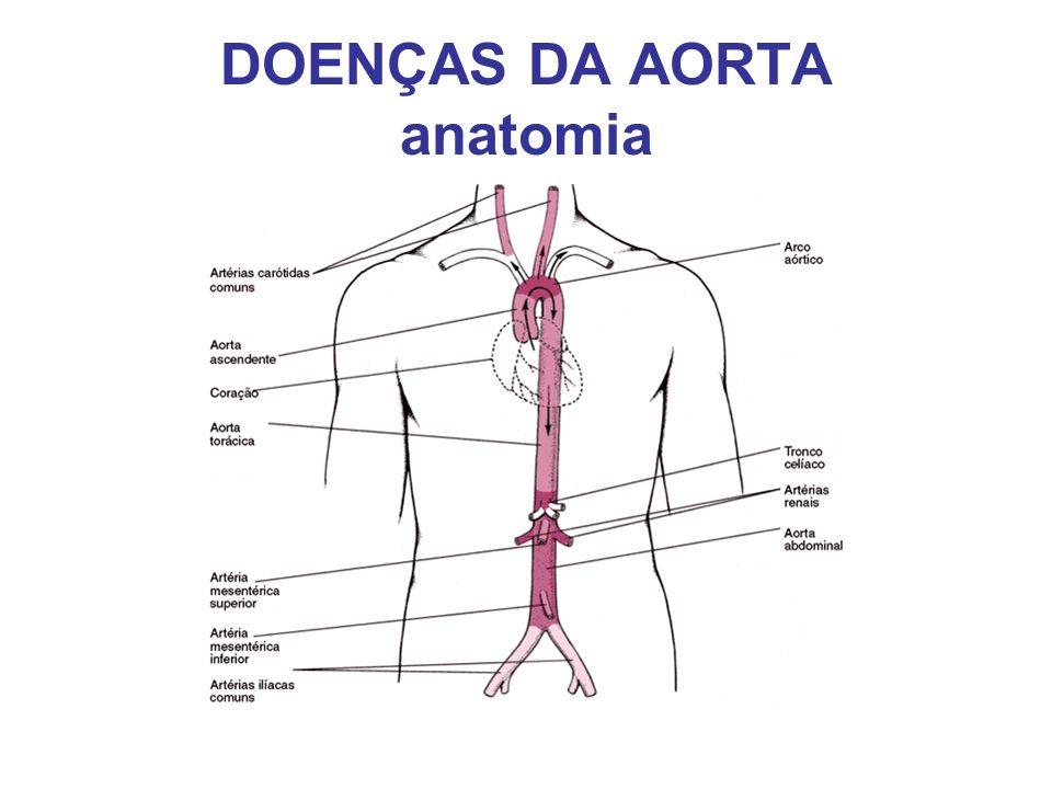 DOENÇAS DA AORTA anatomia