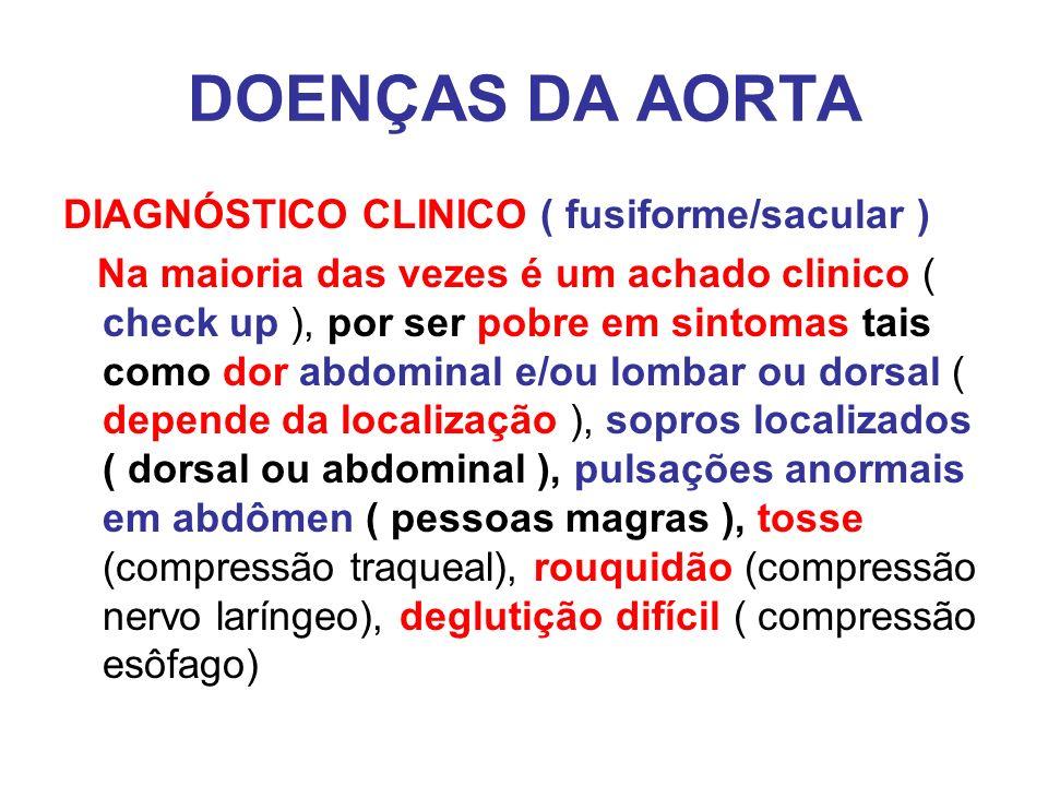 DOENÇAS DA AORTA DIAGNÓSTICO CLINICO ( fusiforme/sacular )
