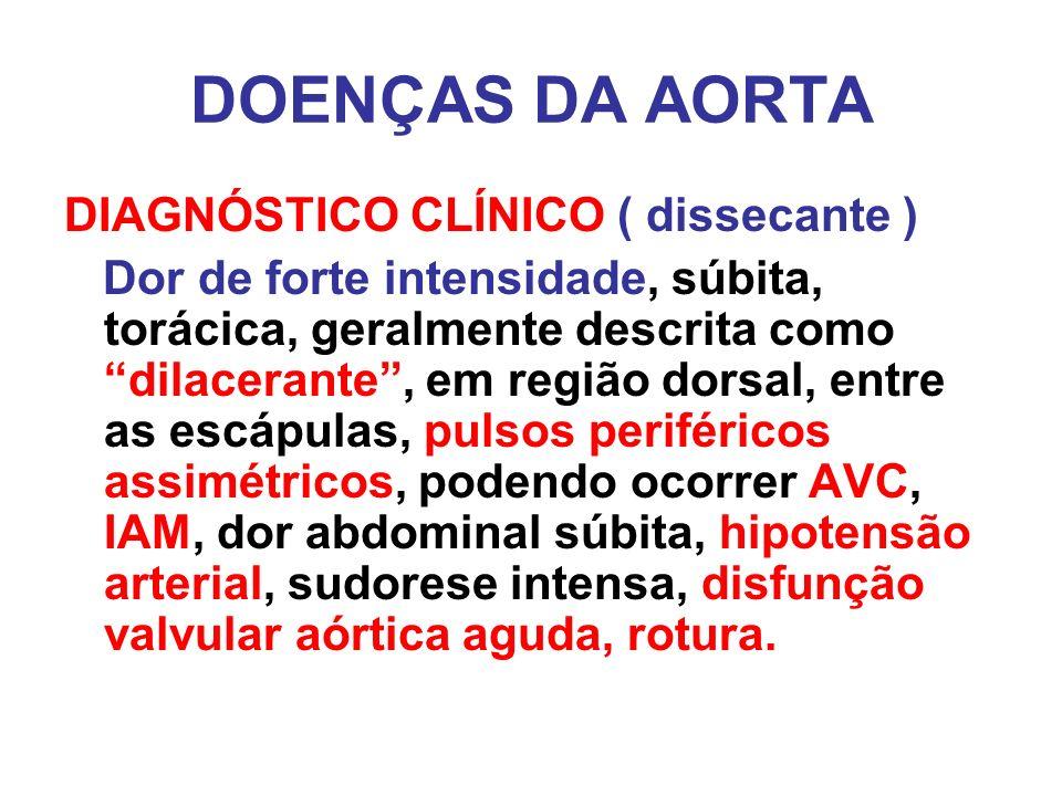 DOENÇAS DA AORTA DIAGNÓSTICO CLÍNICO ( dissecante )