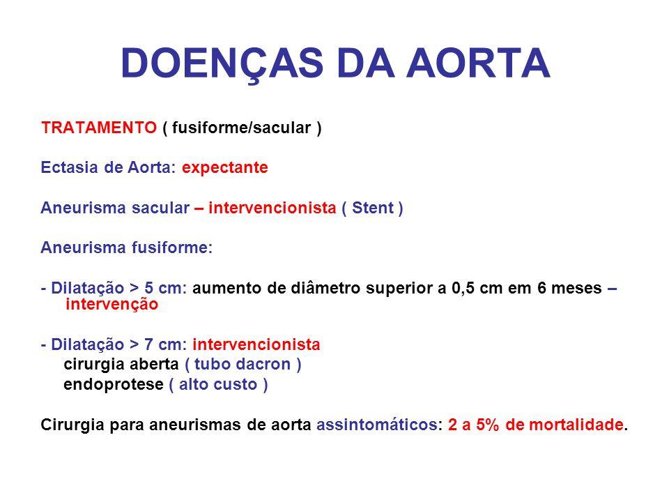 DOENÇAS DA AORTA TRATAMENTO ( fusiforme/sacular )