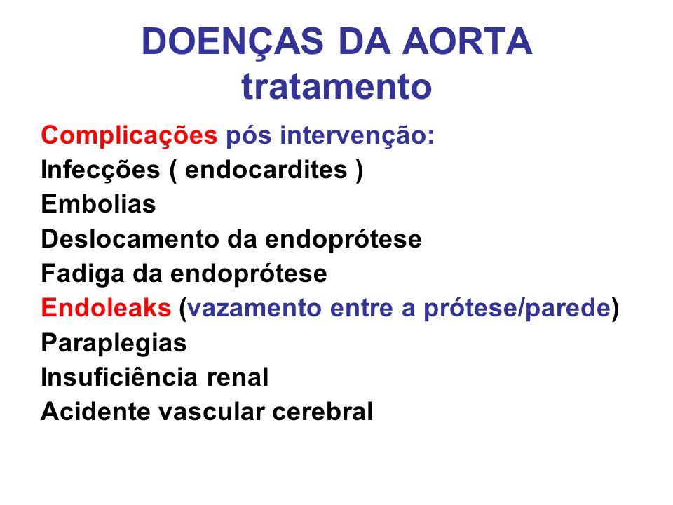 DOENÇAS DA AORTA tratamento