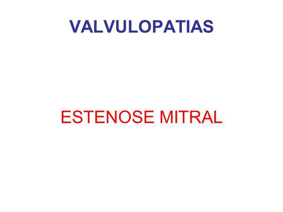 VALVULOPATIAS ESTENOSE MITRAL