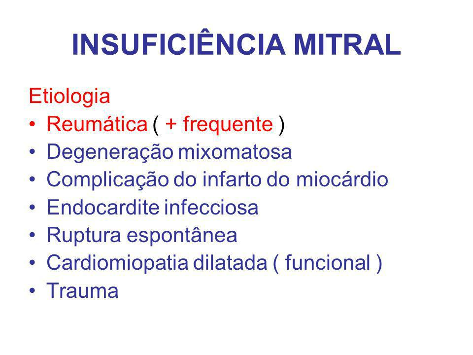 INSUFICIÊNCIA MITRAL Etiologia Reumática ( + frequente )