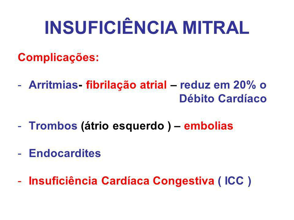 INSUFICIÊNCIA MITRAL Complicações:
