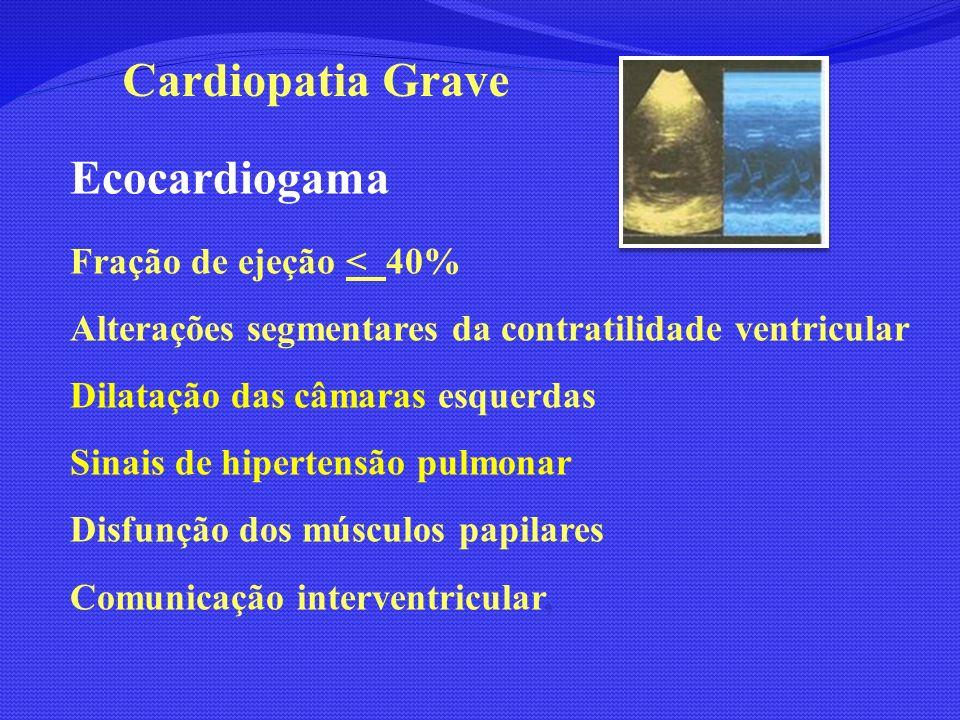 Cardiopatia Grave Ecocardiogama Fração de ejeção < 40%