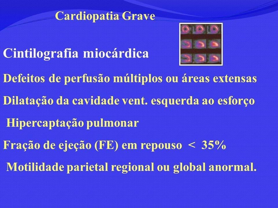 Cintilografia miocárdica