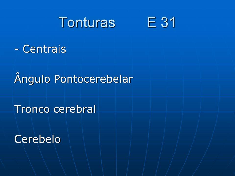 Tonturas E 31 - Centrais Ângulo Pontocerebelar Tronco cerebral