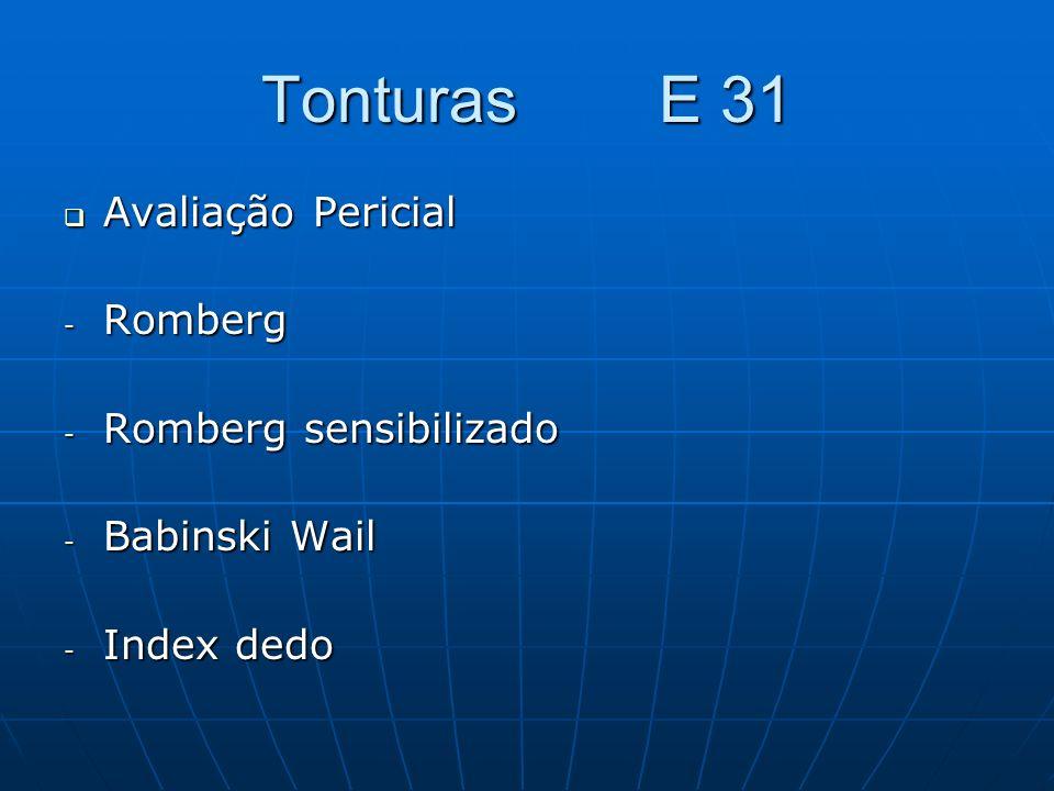 Tonturas E 31 Avaliação Pericial Romberg Romberg sensibilizado