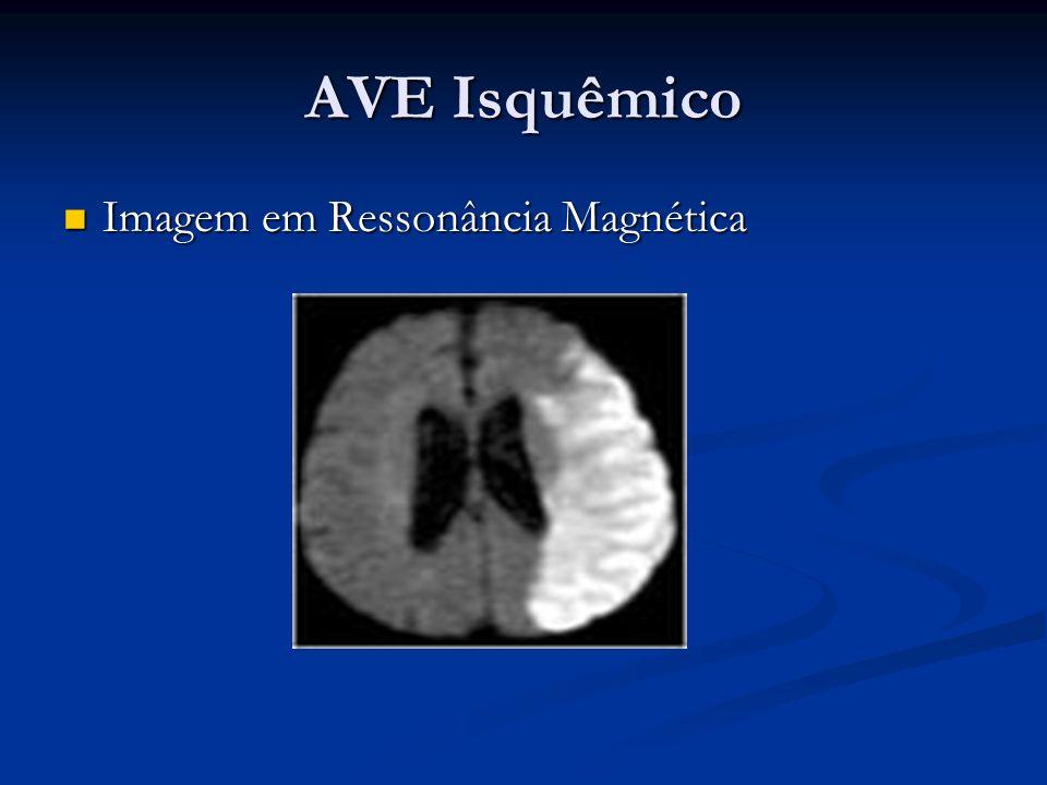 AVE Isquêmico Imagem em Ressonância Magnética