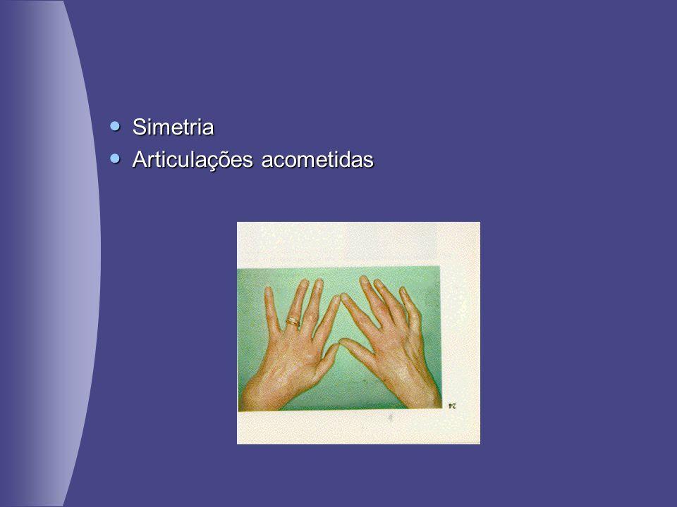 Simetria Articulações acometidas