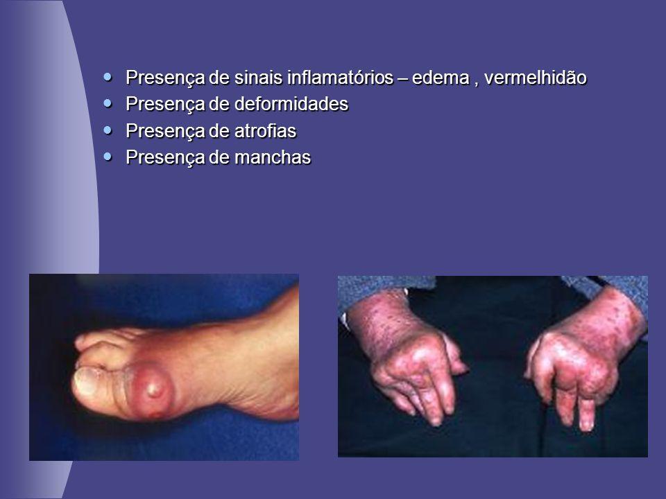Presença de sinais inflamatórios – edema , vermelhidão