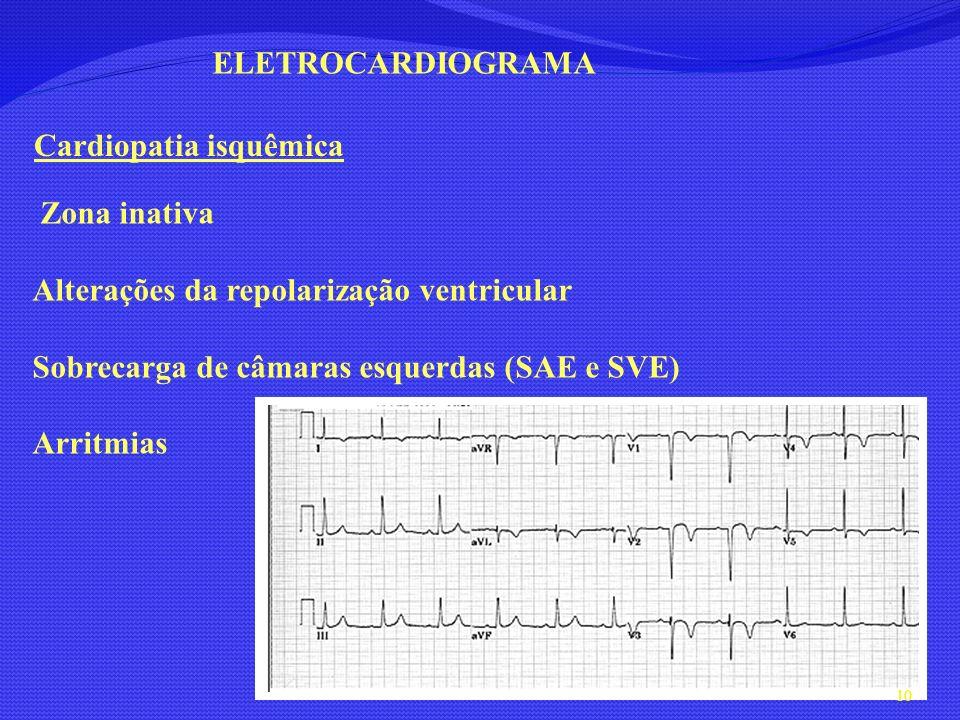 ELETROCARDIOGRAMACardiopatia isquêmica. Zona inativa. Alterações da repolarização ventricular. Sobrecarga de câmaras esquerdas (SAE e SVE)