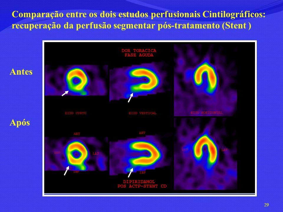 Comparação entre os dois estudos perfusionais Cintilográficos: recuperação da perfusão segmentar pós-tratamento (Stent )