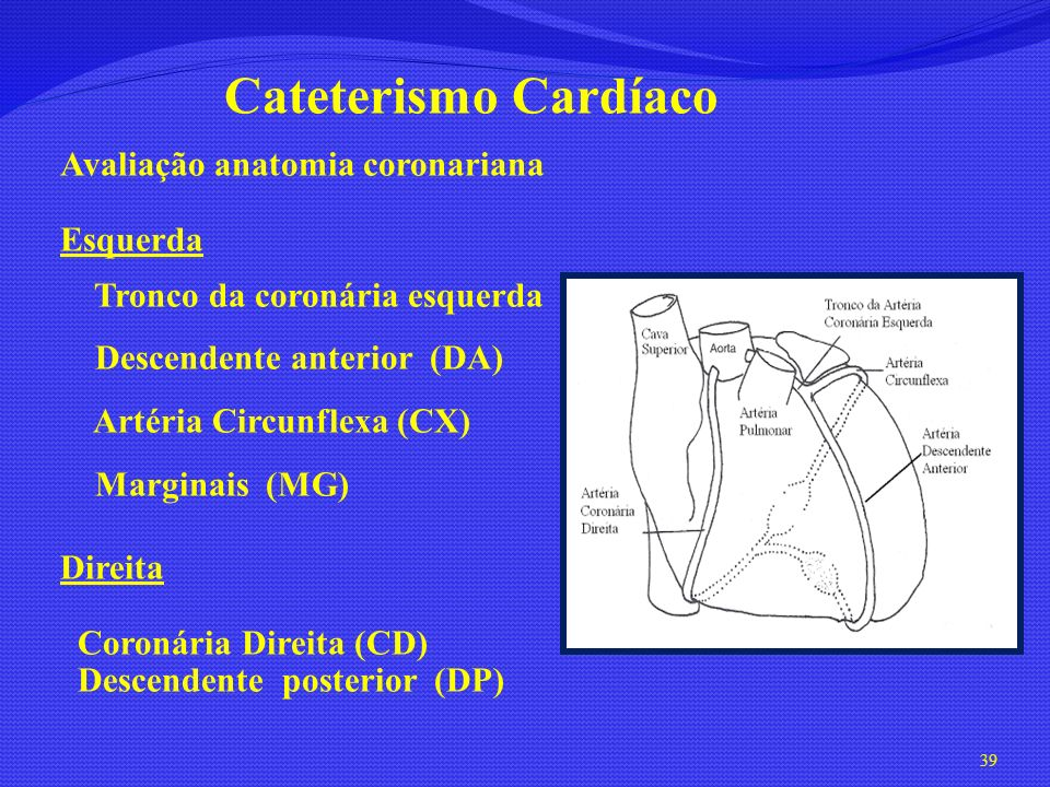 Cateterismo Cardíaco Avaliação anatomia coronariana Esquerda