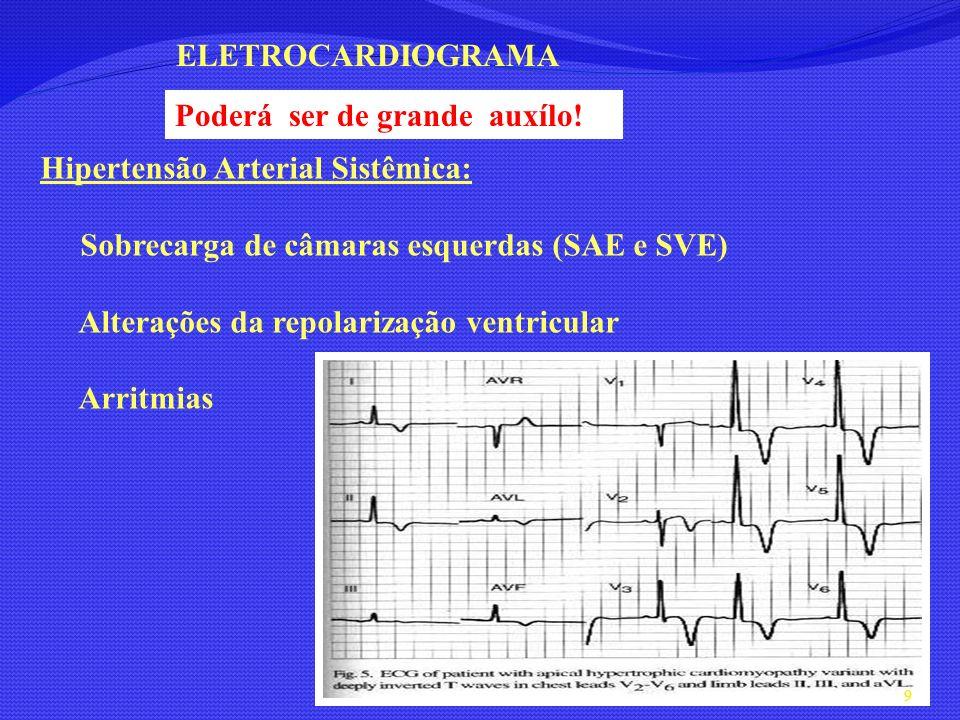 ELETROCARDIOGRAMA Poderá ser de grande auxílo! Hipertensão Arterial Sistêmica: Sobrecarga de câmaras esquerdas (SAE e SVE)