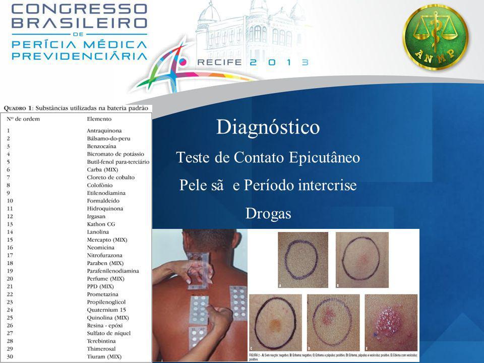 Diagnóstico Teste de Contato Epicutâneo Pele sã e Período intercrise
