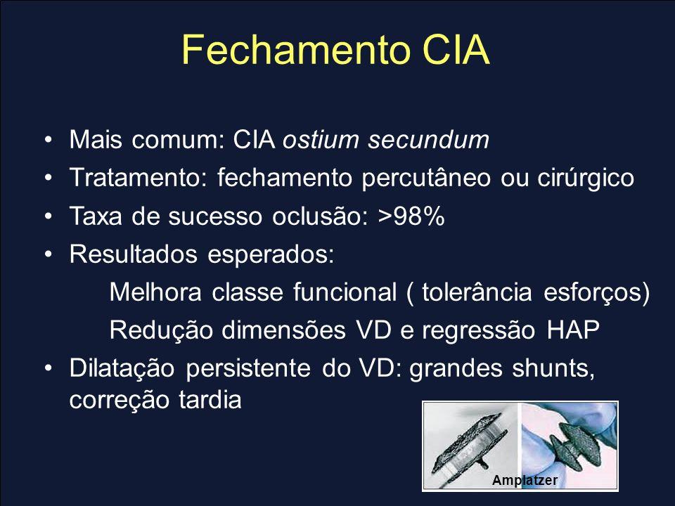Fechamento CIA Mais comum: CIA ostium secundum