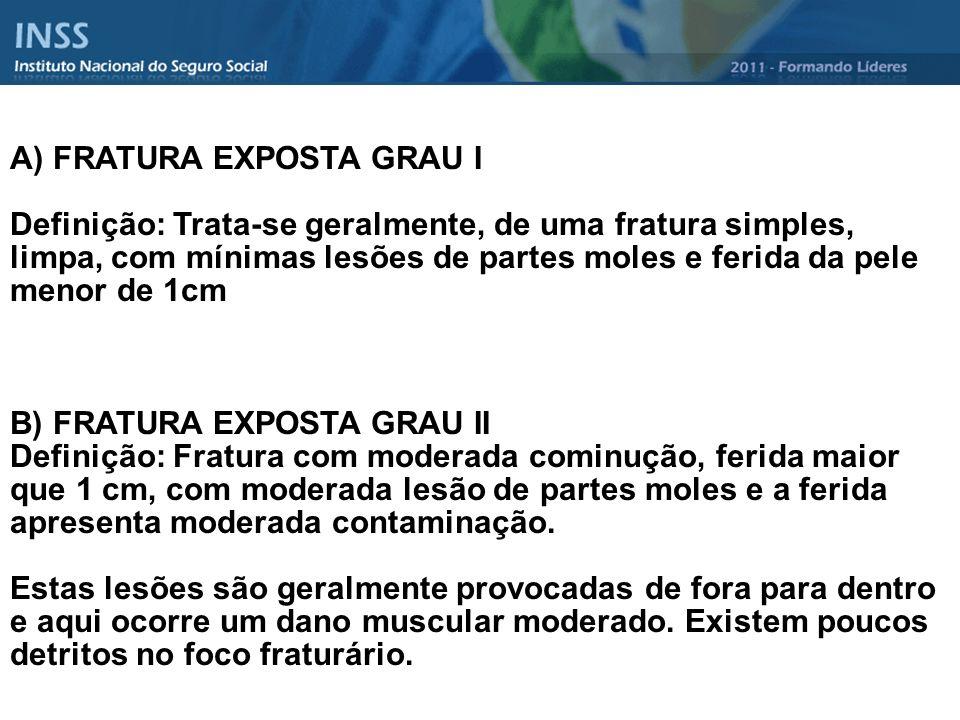 A) FRATURA EXPOSTA GRAU I