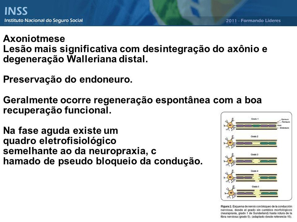 Axoniotmese Lesão mais significativa com desintegração do axônio e degeneração Walleriana distal.