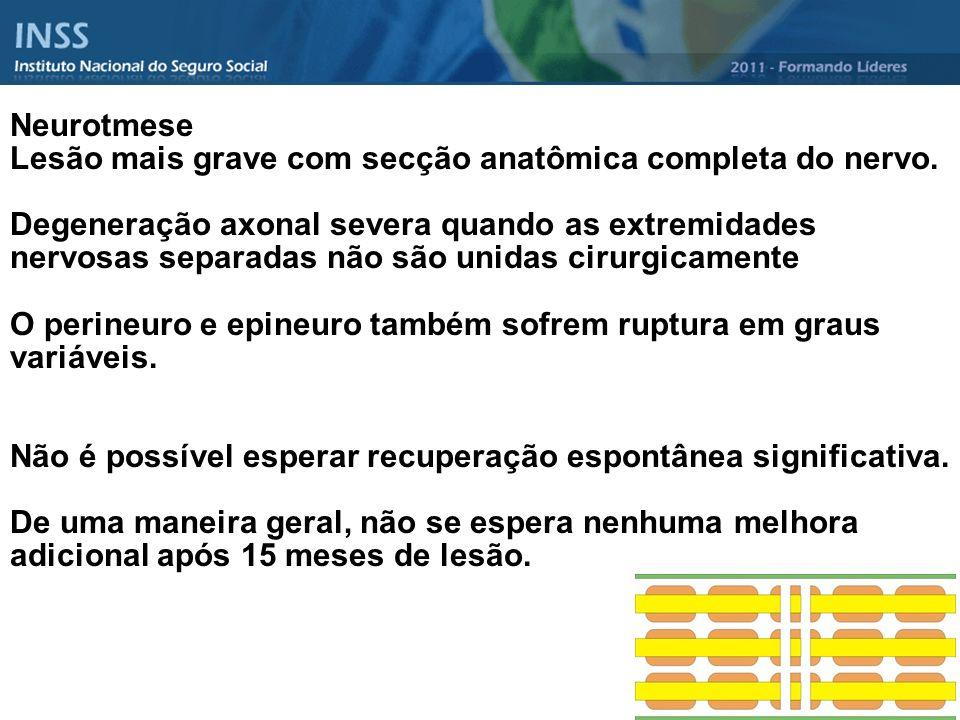 Neurotmese Lesão mais grave com secção anatômica completa do nervo.