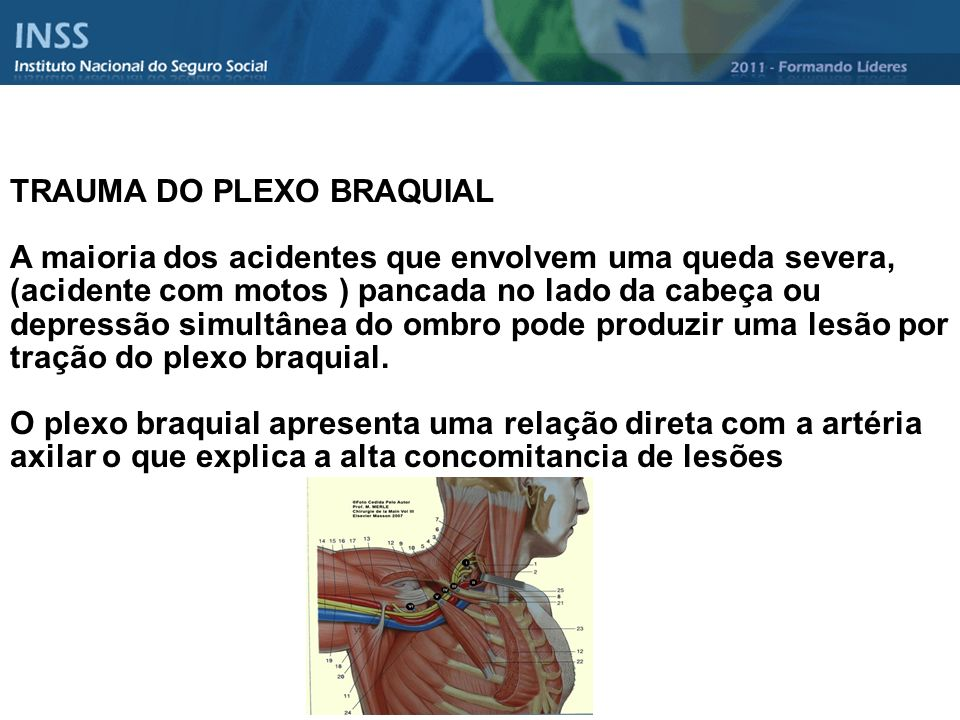 TRAUMA DO PLEXO BRAQUIAL