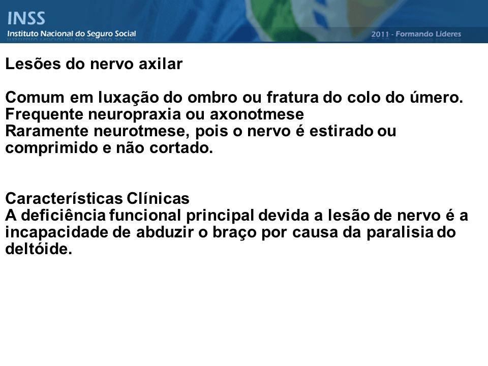 Lesões do nervo axilar Comum em luxação do ombro ou fratura do colo do úmero. Frequente neuropraxia ou axonotmese.