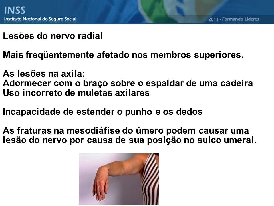 Lesões do nervo radial Mais freqüentemente afetado nos membros superiores. As lesões na axila:
