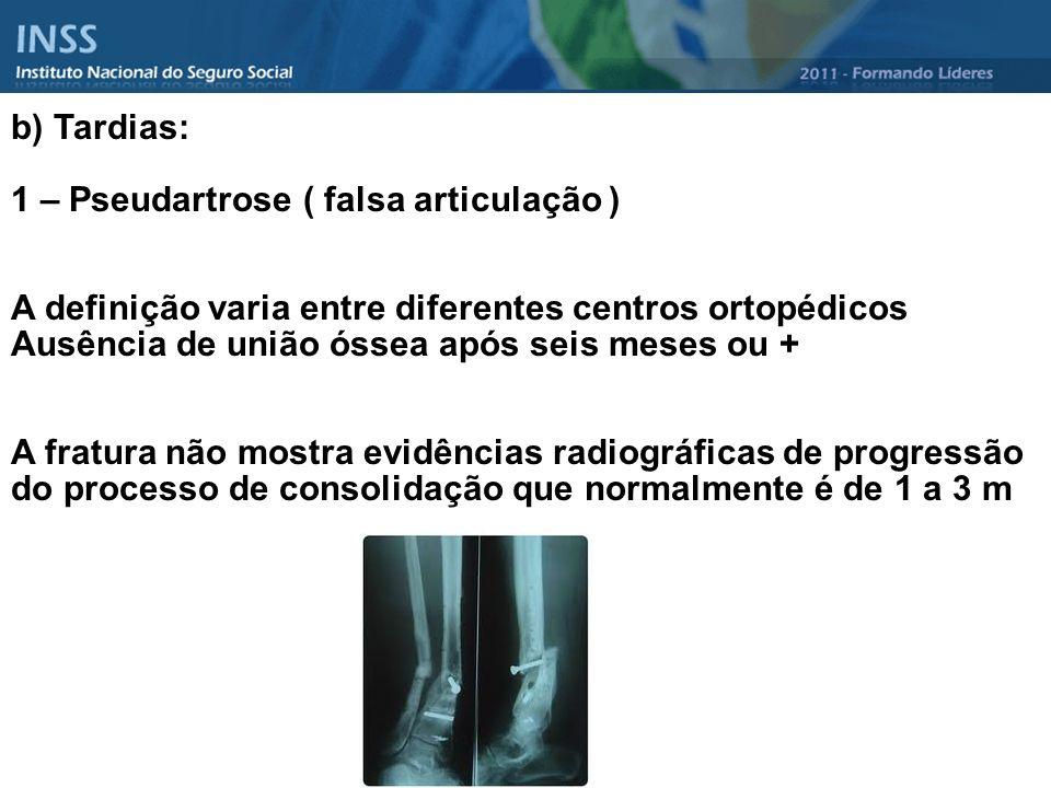 b) Tardias: 1 – Pseudartrose ( falsa articulação ) A definição varia entre diferentes centros ortopédicos.