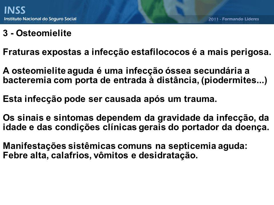 3 - Osteomielite Fraturas expostas a infecção estafilococos é a mais perigosa.