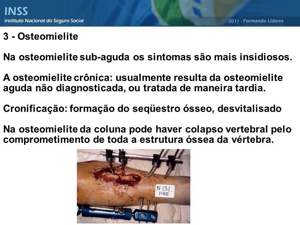 3 - Osteomielite Na osteomielite sub-aguda os sintomas são mais insidiosos.