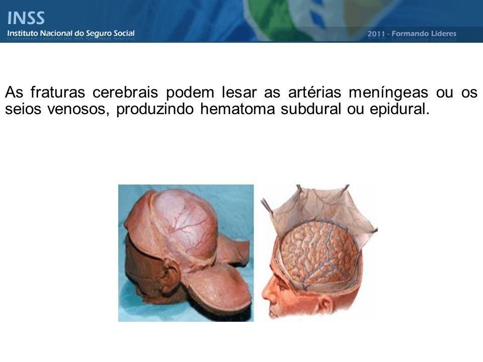 As fraturas cerebrais podem lesar as artérias meníngeas ou os seios venosos, produzindo hematoma subdural ou epidural.